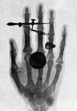 Wilhelm-Roentgen's-X-ray-photograph-of-his-wife's-hand